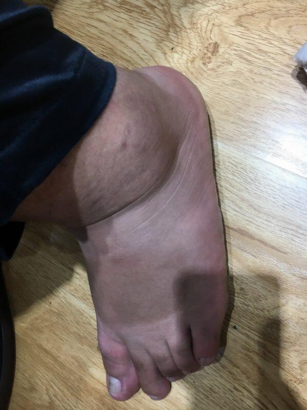 Bàn chân ngắn nhưng mu bàn chân rất dày