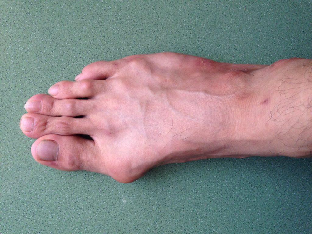 Bàn chân bị gút