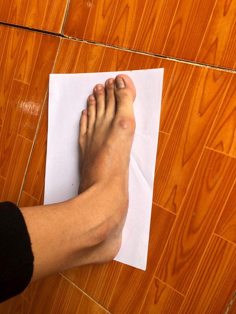 Bàn chân có các ngón chân tòe