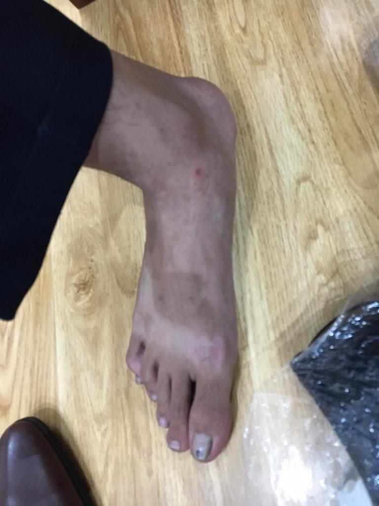 Bàn chân siêu dài